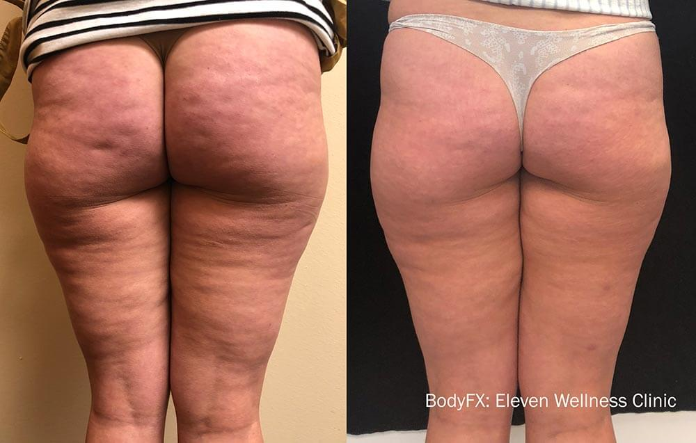 Fat Removal - Butt and Thighs