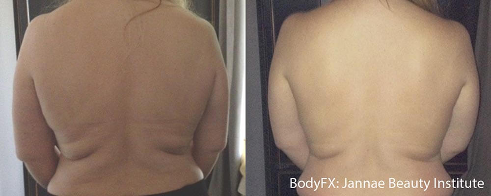 Fat Removal - Back