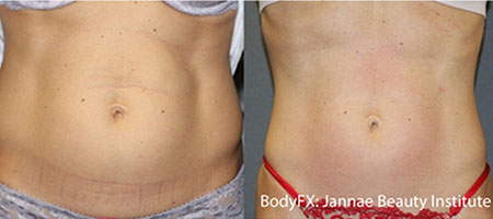 Fat Removal Female Stomach