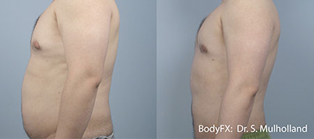 Fat Removal - Male Stomach