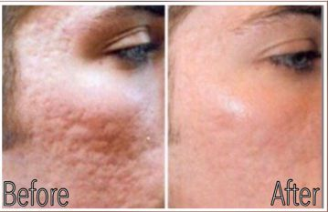acne scars birmingham al