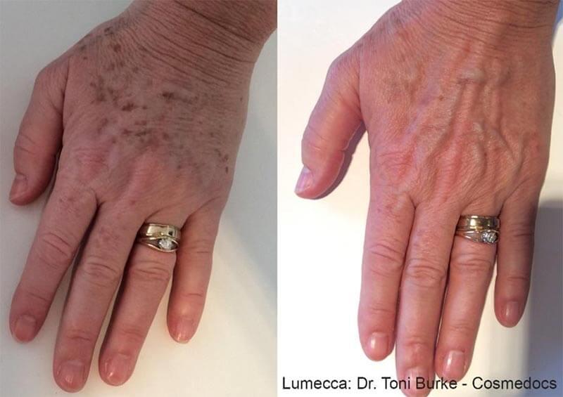 age spot therapy birmingham al