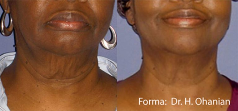 forma before and after