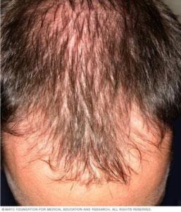 hair loss birmingham al