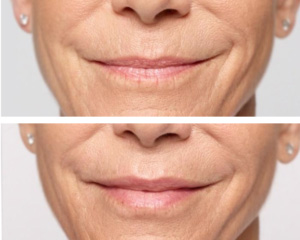 Dermal Fillers - restylane before and after birmingham al