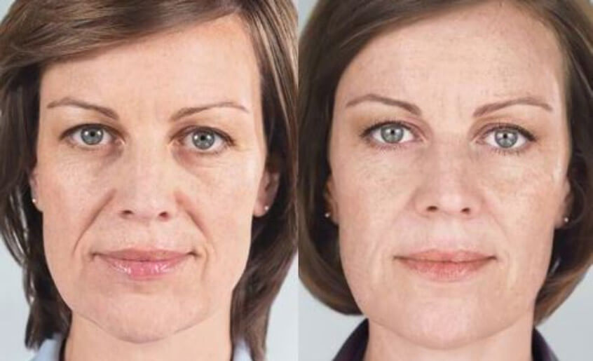 sculptra injectable