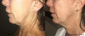 Before & After - Morpheus8 Treatment