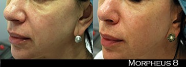 Before and After Morpheus8 Treatment - Skin Resurfacing