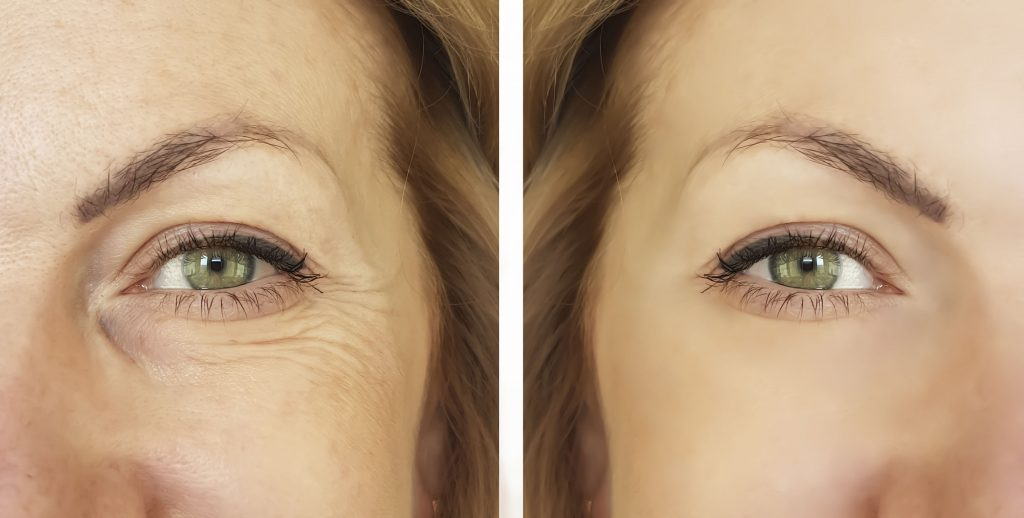 Sculptra Filler can Turn Back the Clock without Surgery