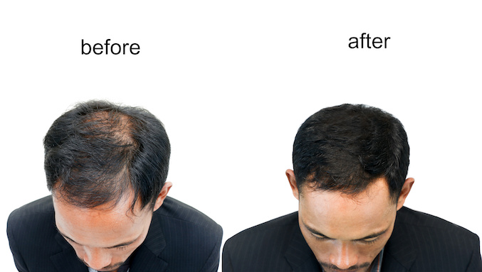 Hair Loss in men and women