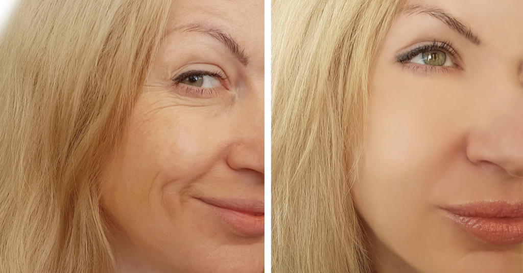 Volumize The Face With Sculptra offered by K2 Restorative Medicine in Birmingham, Alabama (2)