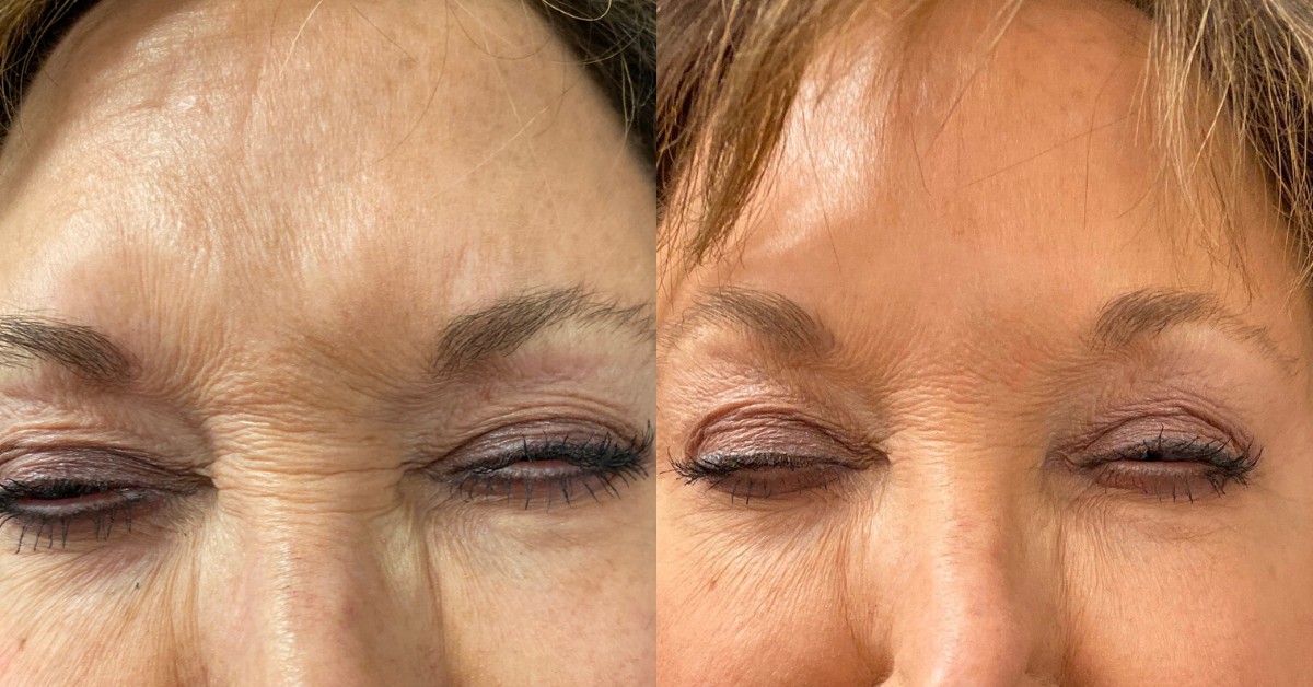Botox and Dysport for Wrinkles and frown lines in Birmingham Alabama at K2 restorative medicine (3)