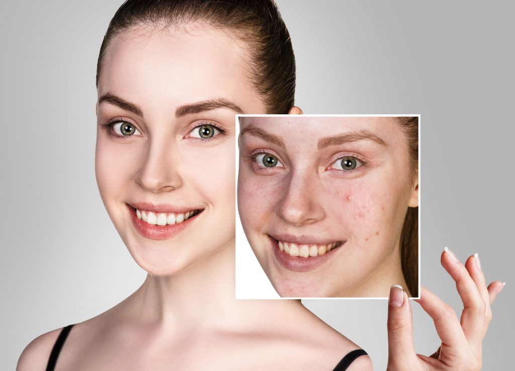 Acne and Acne Scars are a common issues in young adults and pre-menopausal women