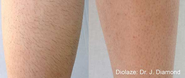 Before and After Diolaze Laser Hair Removal Treatment offered at K2 restorative medicine in Trussville alabama (1)