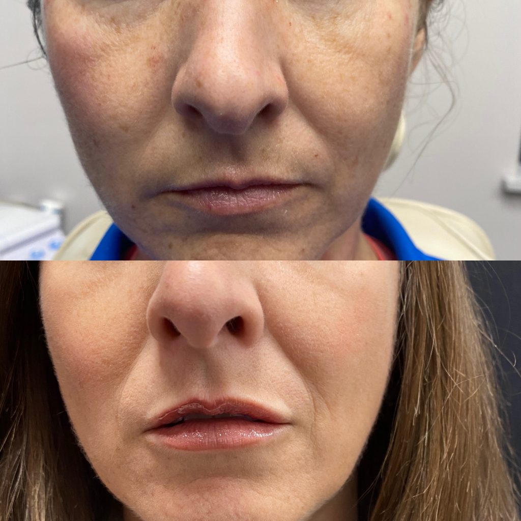 Real patient - Before and Immediately after PDO Thread-Lifting & Lip Filler