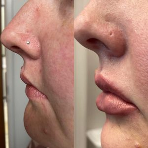 Before and after Restylane Kysse Injections offered by Dr. Pamela Kulback in Alabama