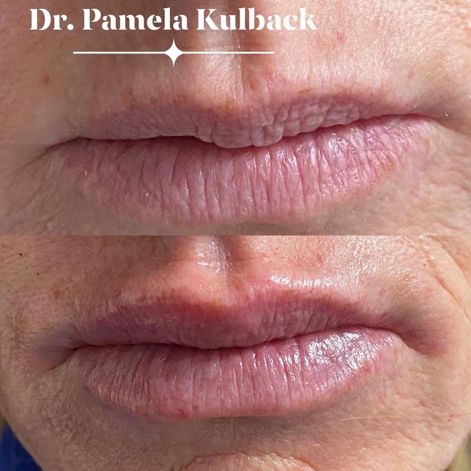 Before and After Kysse Lip Filler with Dr. Pamela Kulback at K2 Restorative Medicine in Trussville, Alabama