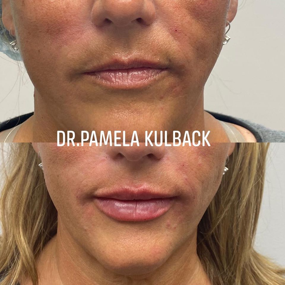 Before and After Restylane Kysse lip filler injection with Dr. Pamela Kulback at K2 Restorative Medicine