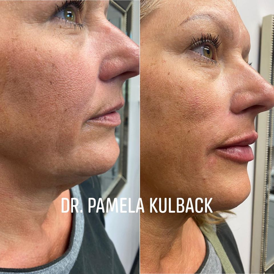 Side view of our patient Before and After Kysse lip filler with Dr. Pamela Kulback