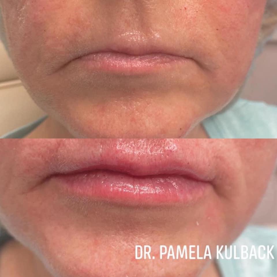 LIP FILLER BY DR. Pamela Kulback