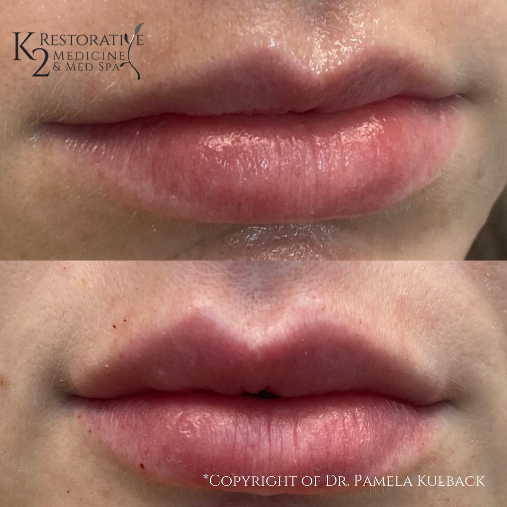 Kysse Lip Filler before and after