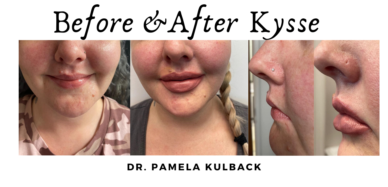 Before and after Restylane Kysse for Lips