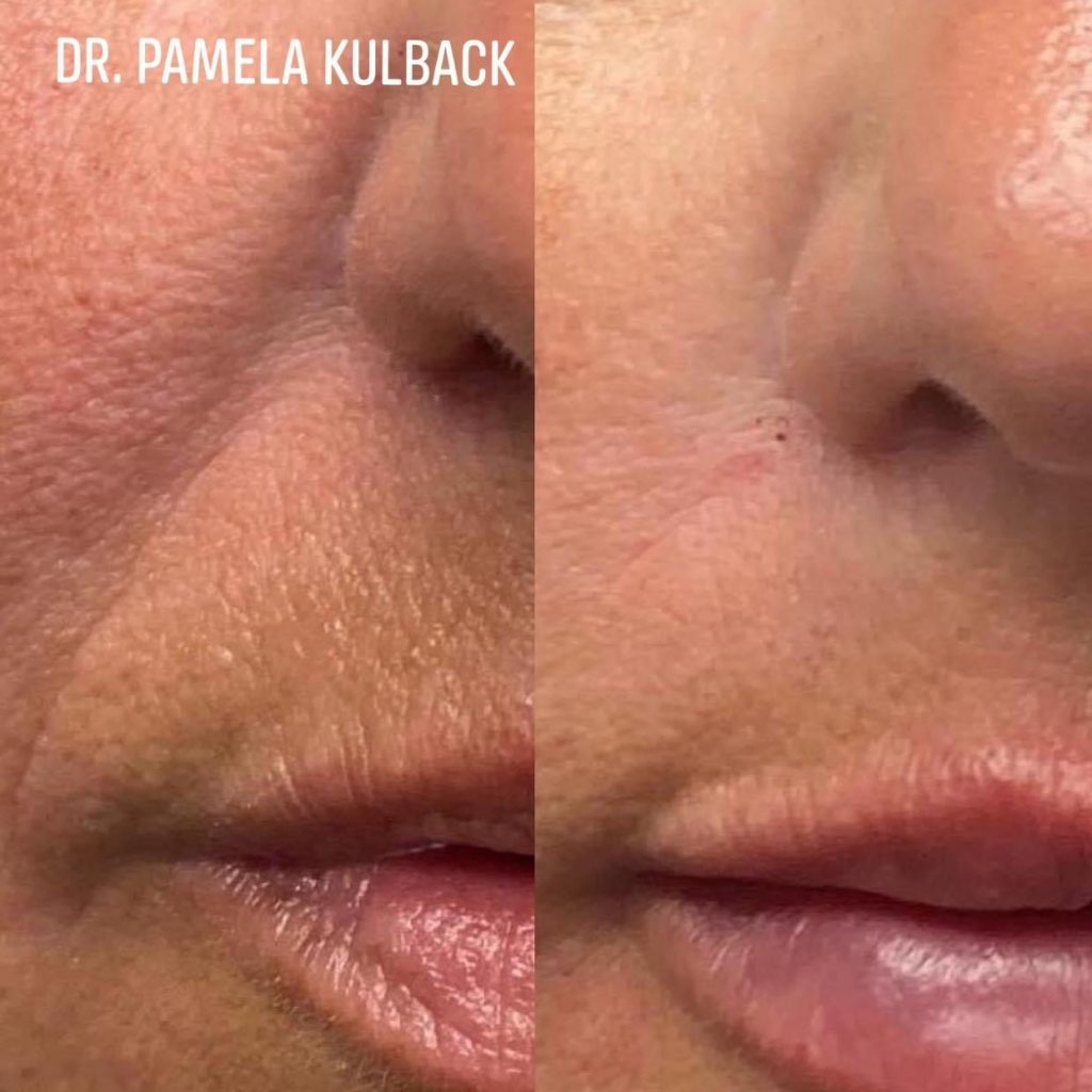 PDO Thread Lift before and after by Dr. Kulback