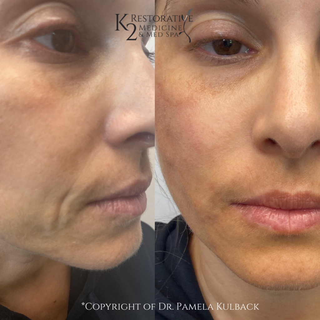 Before and After Lower and Mid-Face Thread-Lift