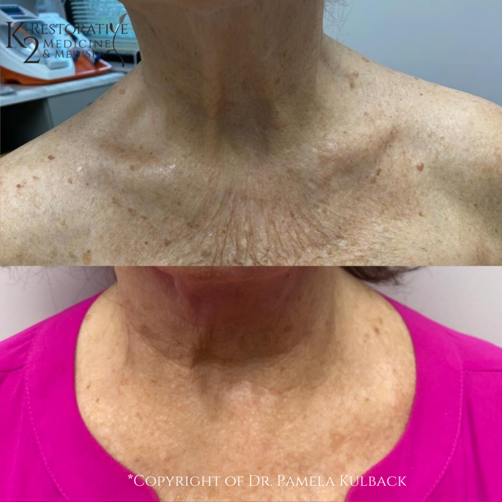 PDO Threads before and after Neck lift by Dr. Pamela Kulback