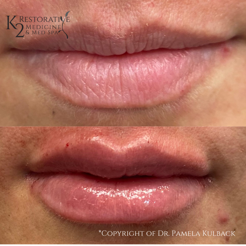 Before and after Restylane Kysse to add volume to upper and lower lip