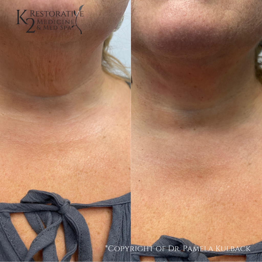 K2 Restorative Before and Afters PDO Thread Lift