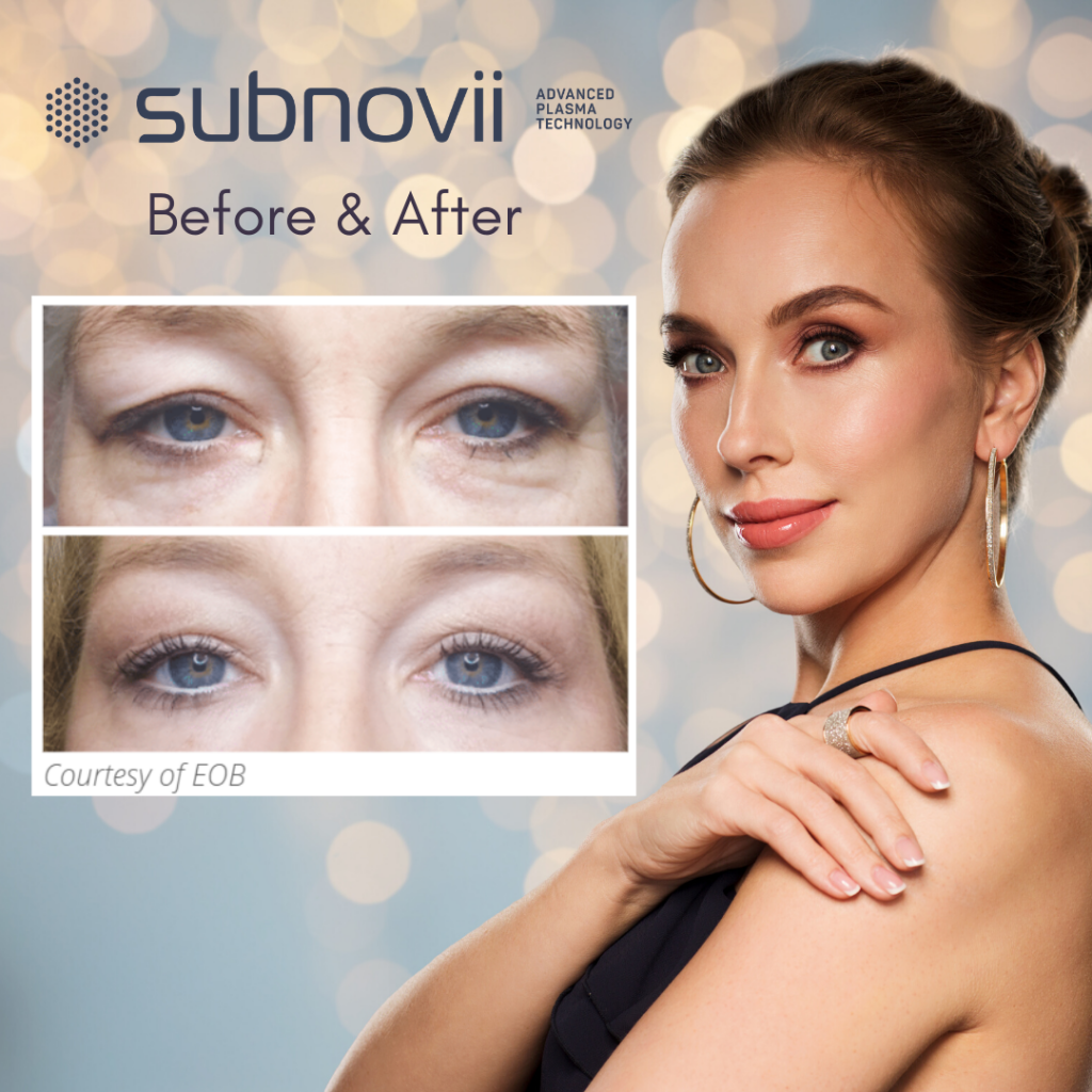 Before and After Subnovii Plasma Pen Treatment offered at K2 Restorative Medicine
