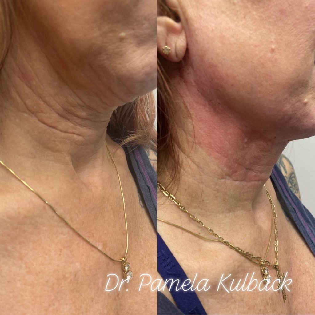 Before and Immediately After PDO Thread-Lift of the neck - Side View