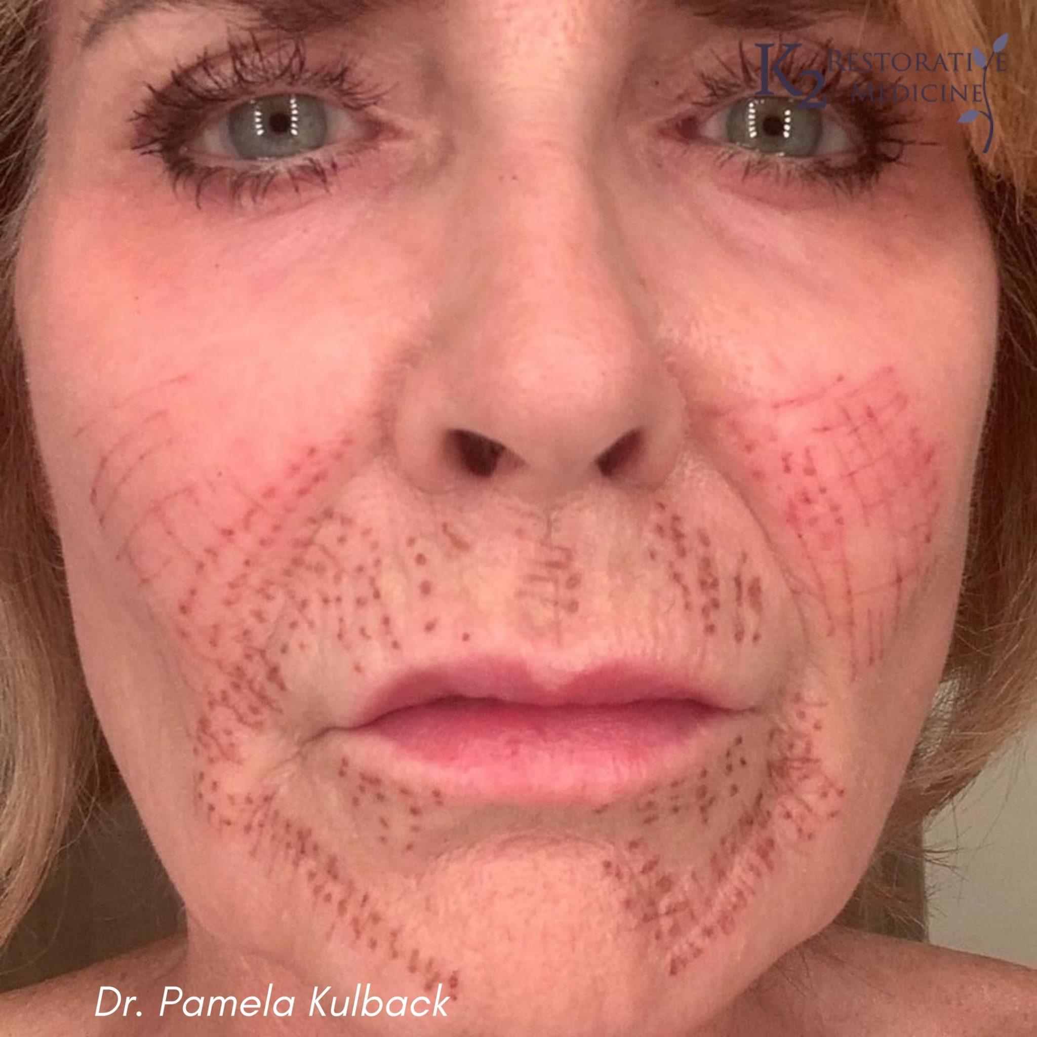 2 Days Post Subnovii Plasma Pen Treatment of the lower face by Dr. Pamela Kulback