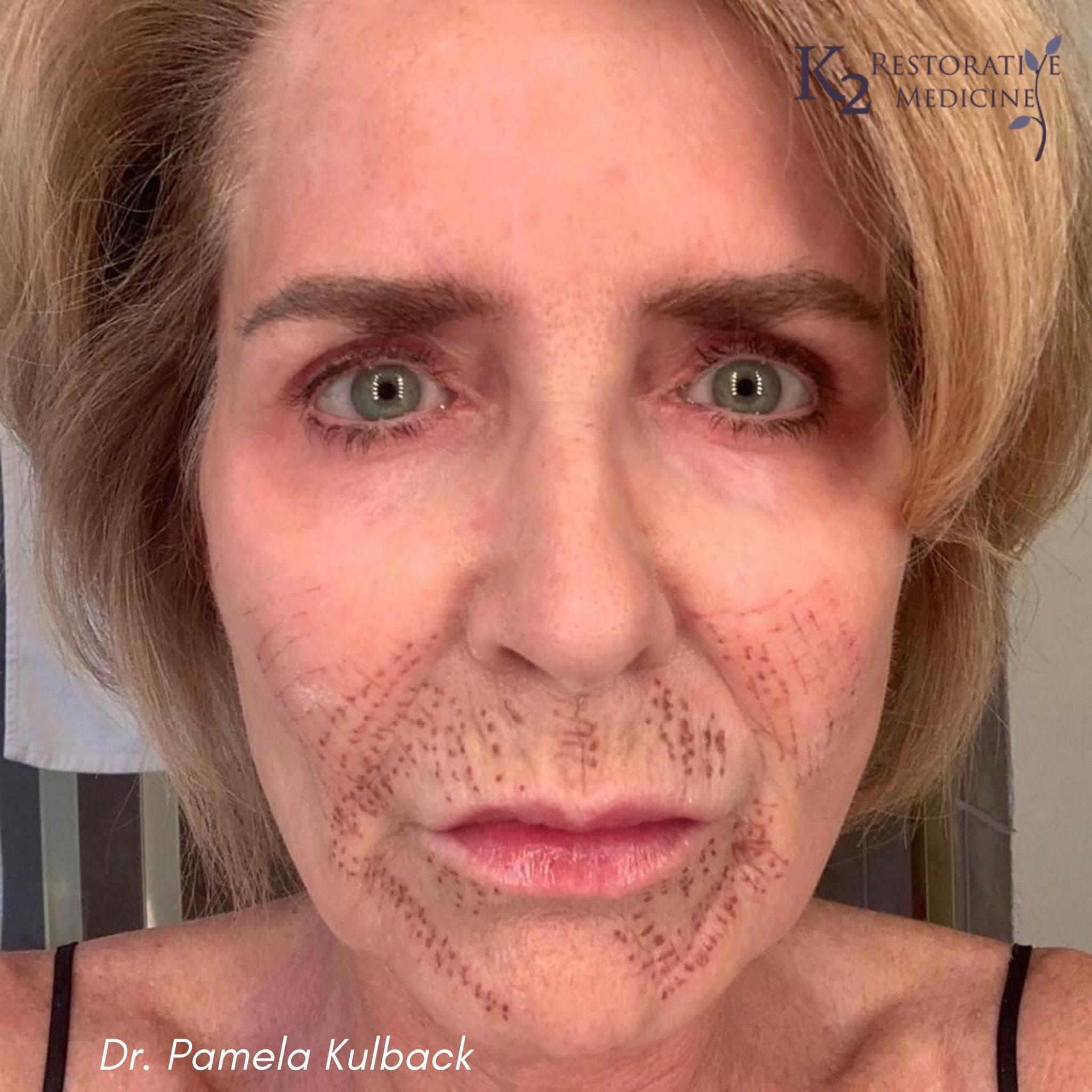5 Days Post Subnovii Plasma Pen Treatment of the lower face by Dr. Pamela Kulback
