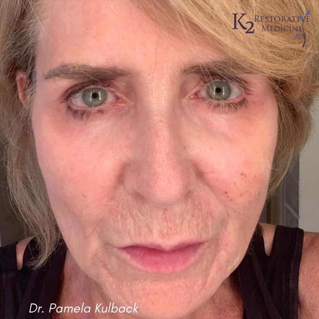 7 Days Post Subnovii Plasma Pen Treatment of the lower face by Dr. Pamela Kulback
