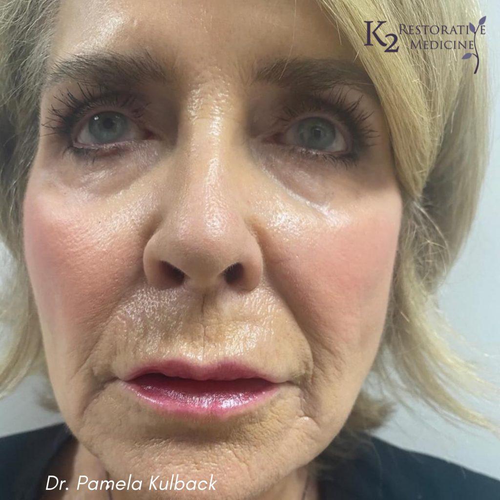 12 Days Post Subnovii Plasma Pen Treatment of the lower face by Dr. Pamela Kulback