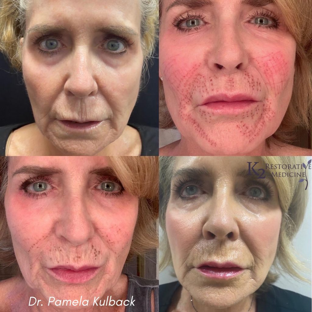 Before and Post Subnovii Plasma Pen Treatment of the lower face by Dr. Pamela Kulback