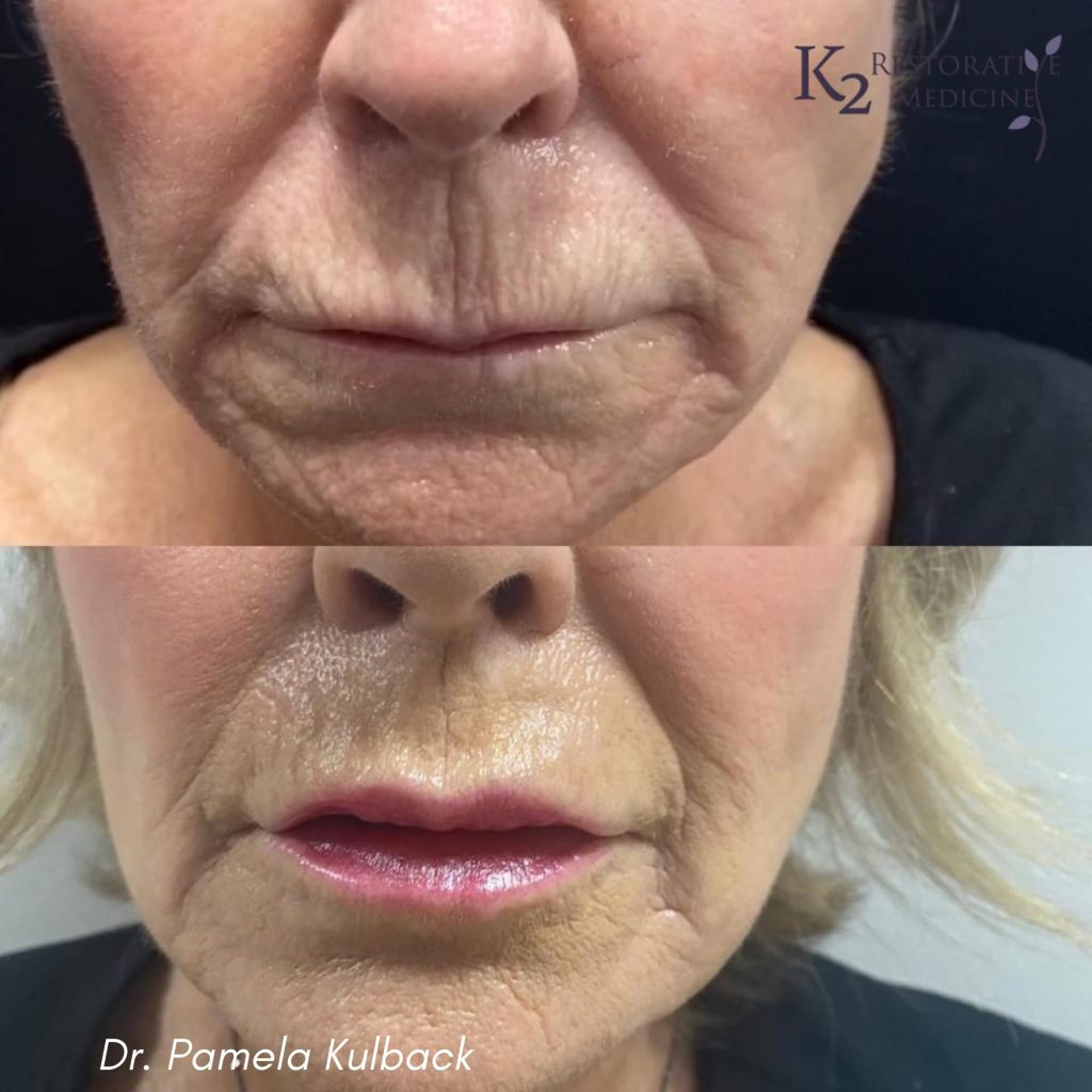 Before and After Plasma Pen Treatment