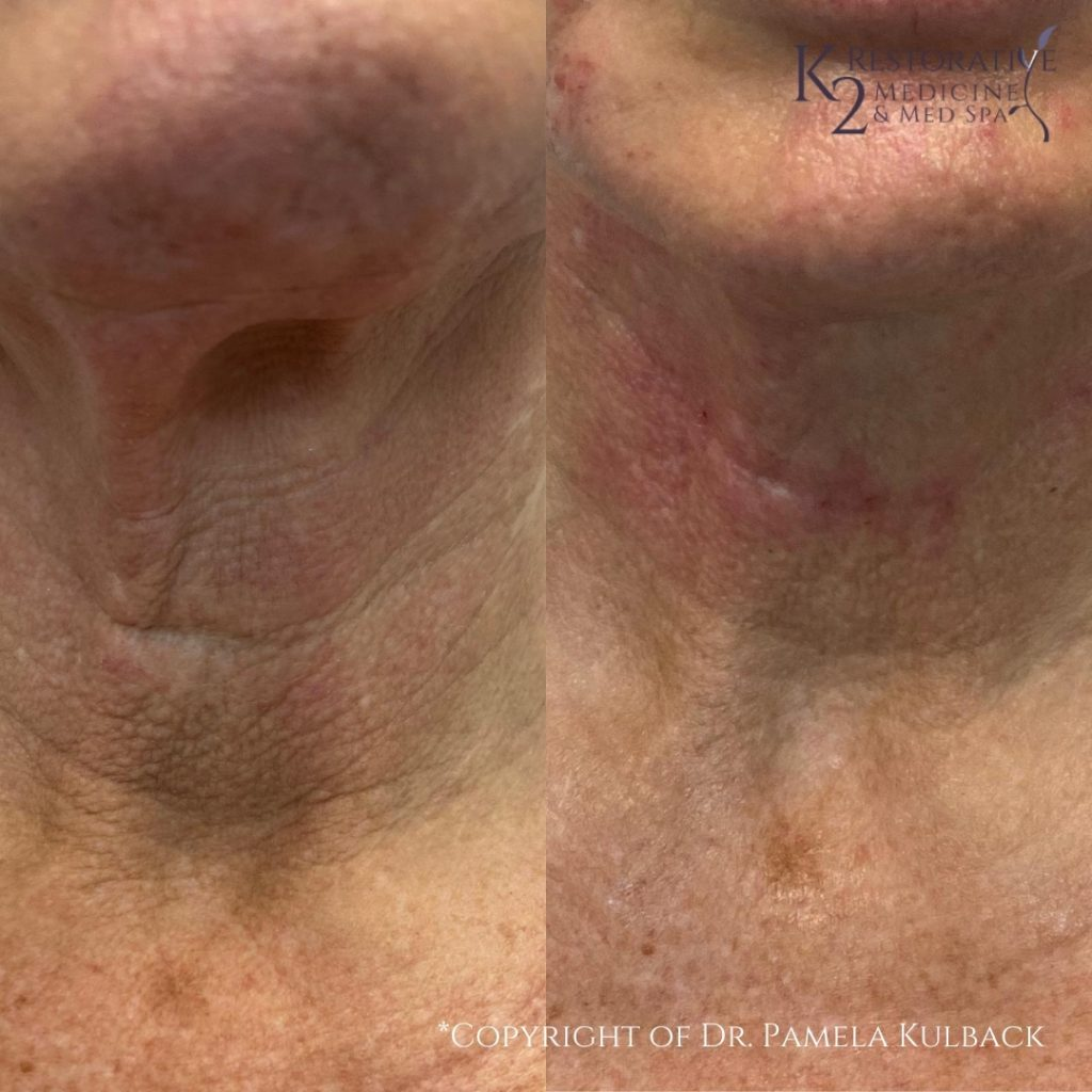 Before and after PDO Thread-Lift of the neck