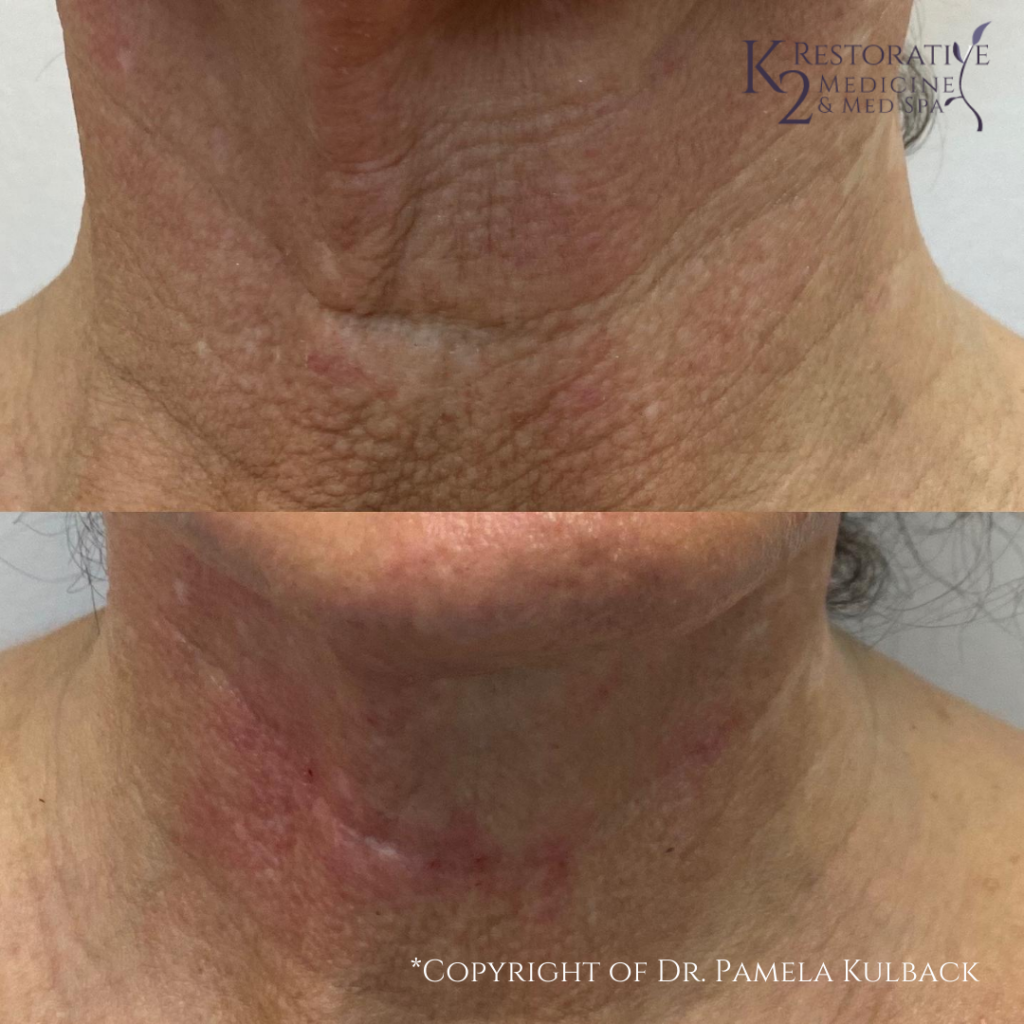 Before and Immediately After PDO Thread-Lift of the neck