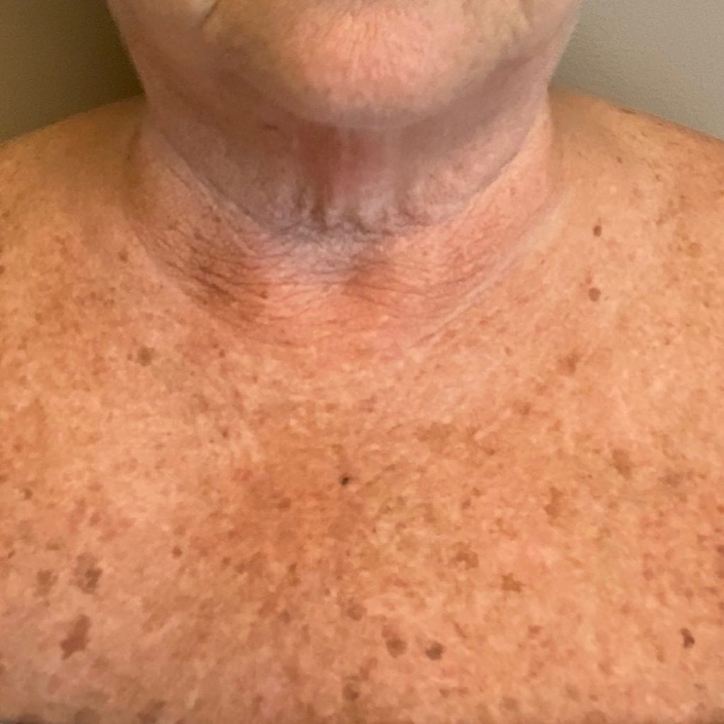 Before IPL Therapy for Age Spots & Sunspots and to reduce redness.