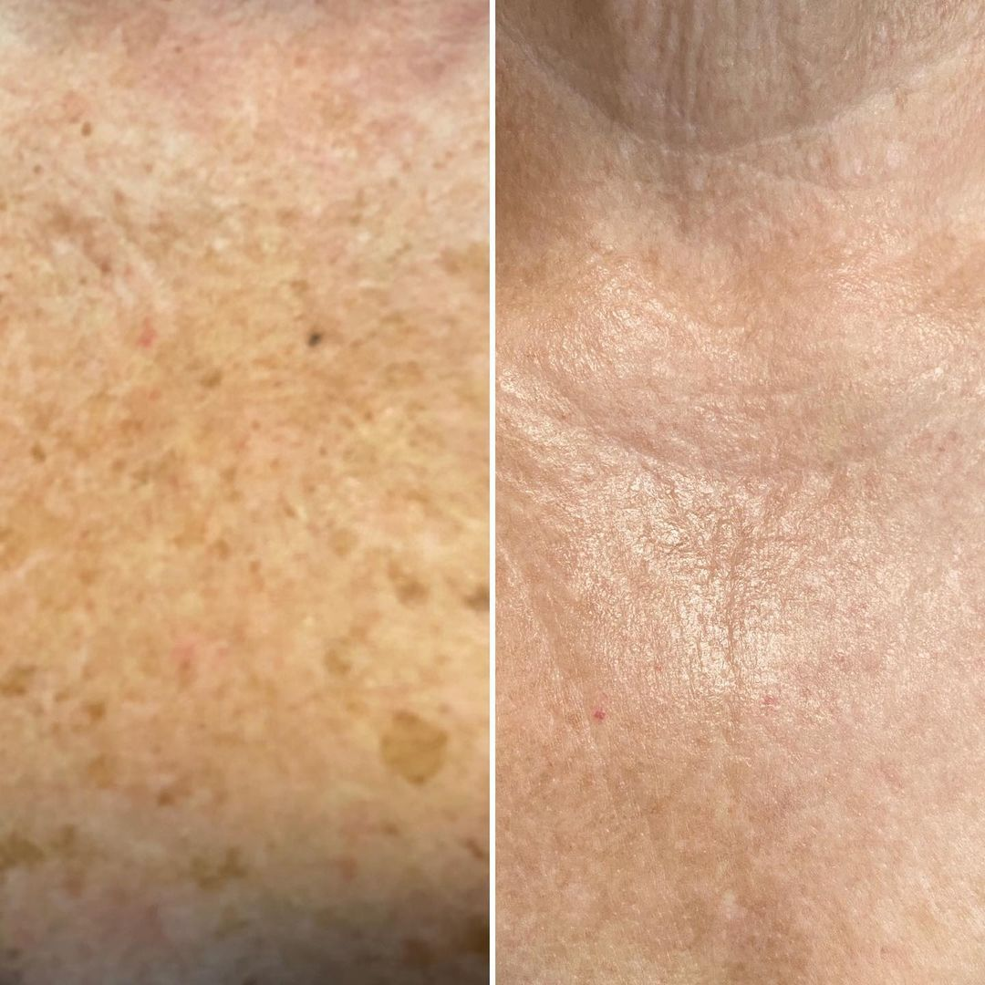 Before and after IPL Therapy for sun spots and age spots 2 treatments