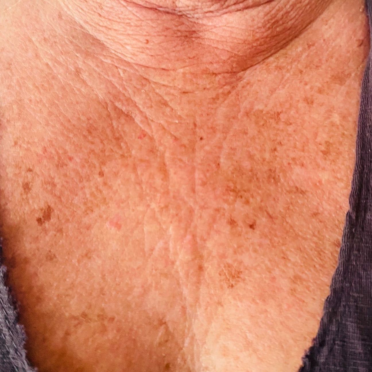 After IPL Therapy for Age Spots and Sun Spots