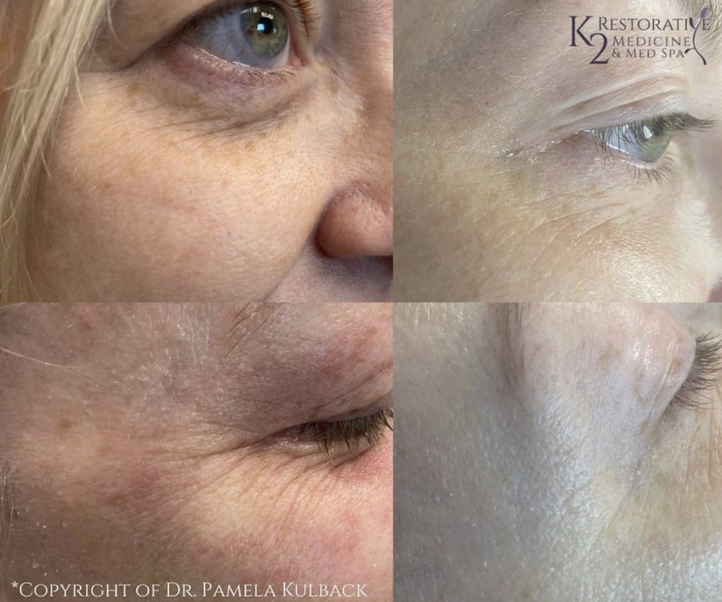 Before and After Plasma Pen Treatment for Wrinkle Reduction, Uneven Skin Tone and Spots