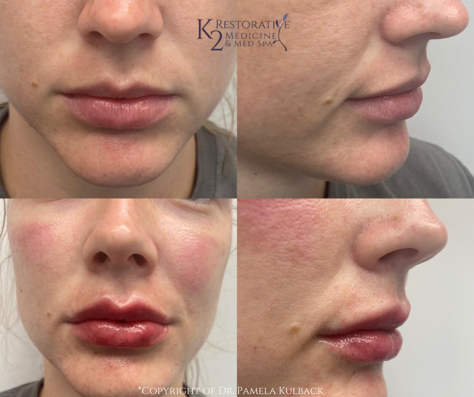 Before and after Restylane Kysse for Lip Enhancement and Restylane Lyft for cheeks - mid face filler