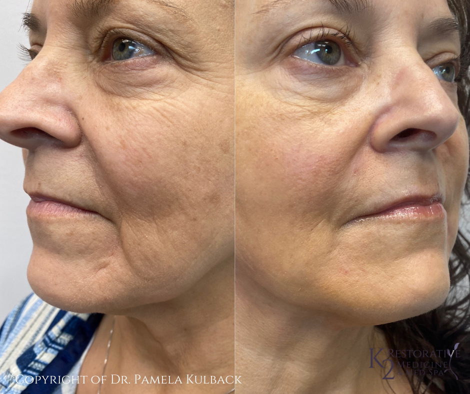 Before and after PDO Thread-Lift of the face and neck by Dr. Pamela Kulback