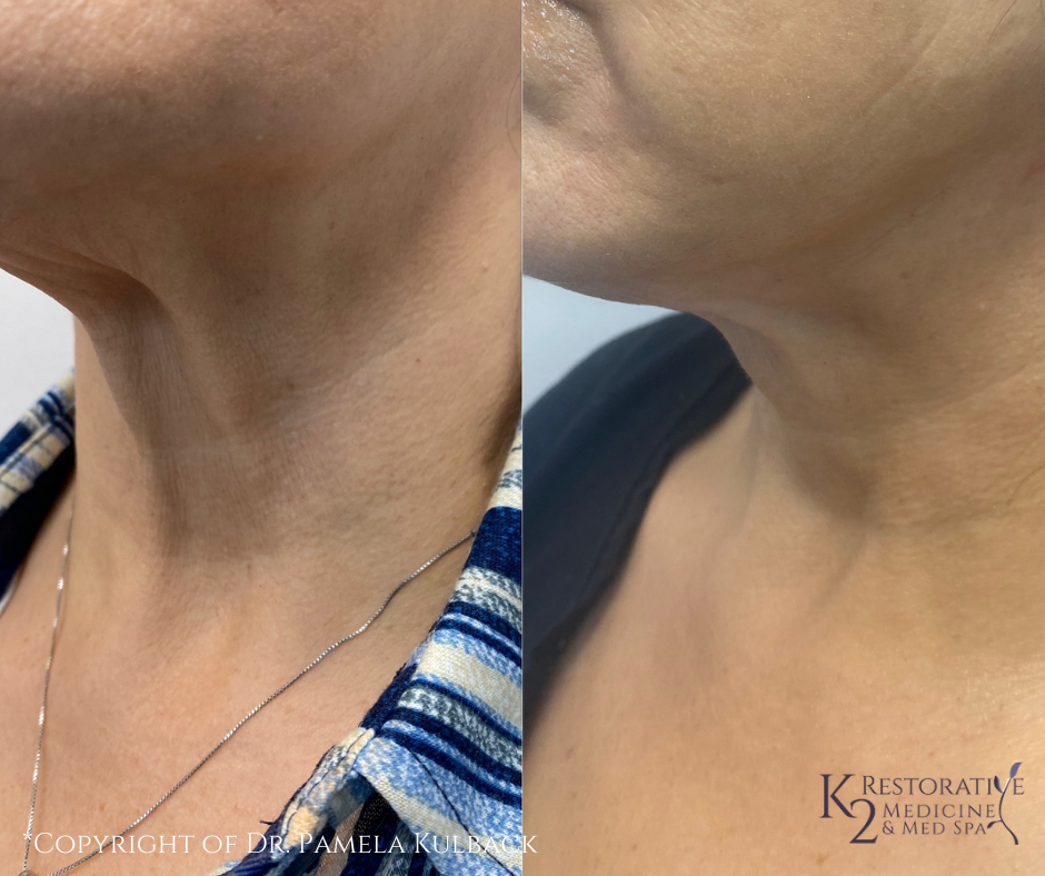 Before and After PDO Thread-Lift of the neck and lower face