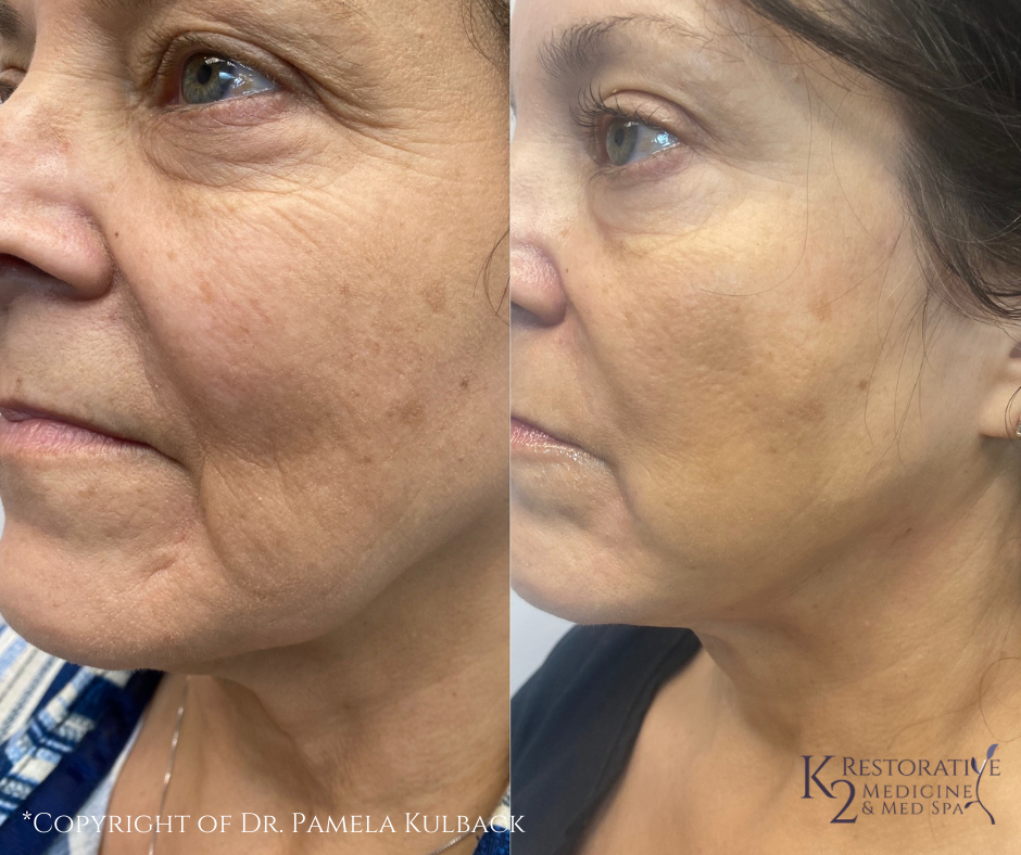 Before and after PDO Thread-Lift of the face and neck