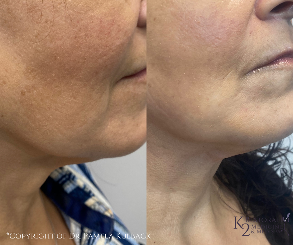 Before and after PDO Threads for lower face and neck by Dr. Pamela Kulback